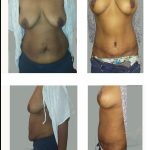 breast-lift-abdomen-tuck-scaled.jpg