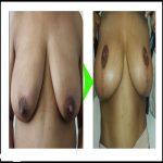 breast-reduction-pre-chocolate.jpg