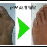 bunion-correction-scaled.jpg