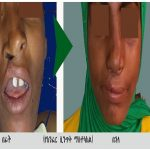 cleft-secondary-deformity-correction.jpg