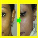 otoplasty-ear-pinning..jpg