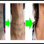 tattoo-treatment-series-1-results-jpg.jpg